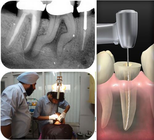 endodontic courses in india